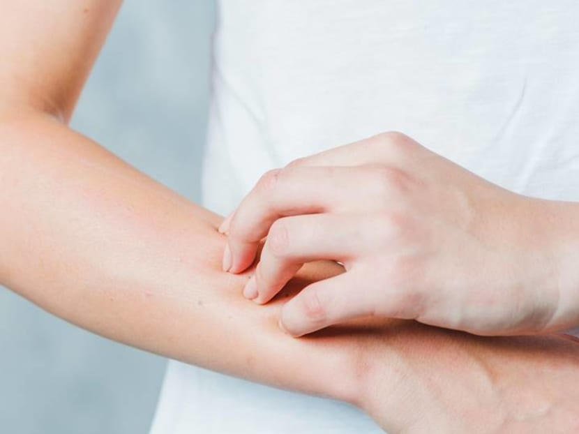 Unexplained rashes: Why do they occur and when should you see a doctor?