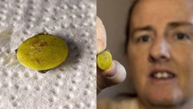 新西兰女子因冠病检测意外发现 玩具卡在鼻孔内37年