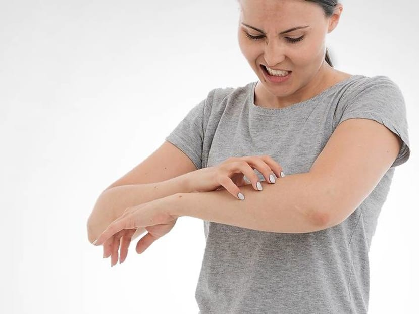 How to deal with eczema if wearing masks and washing hands make you itch