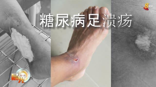 晨光 善方保健: 慢性伤口护理疗法 蛆虫治疗免除截肢