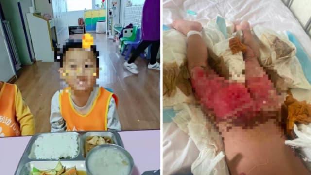 跌入热汤面桶中国男童烫伤休克