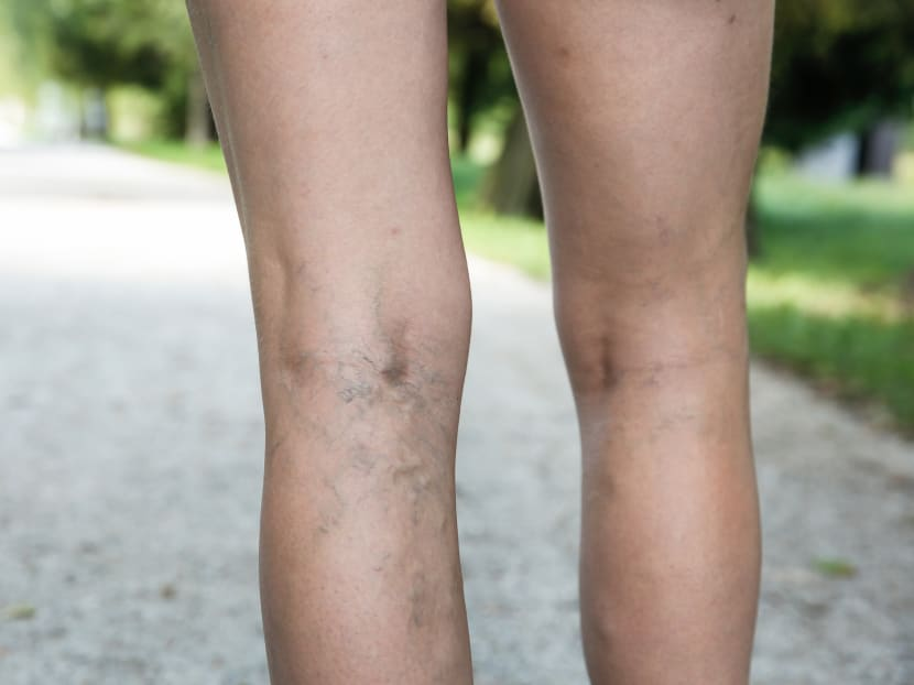 Experiencing painful, heavy periods? You might have varicose veins in the pelvic area