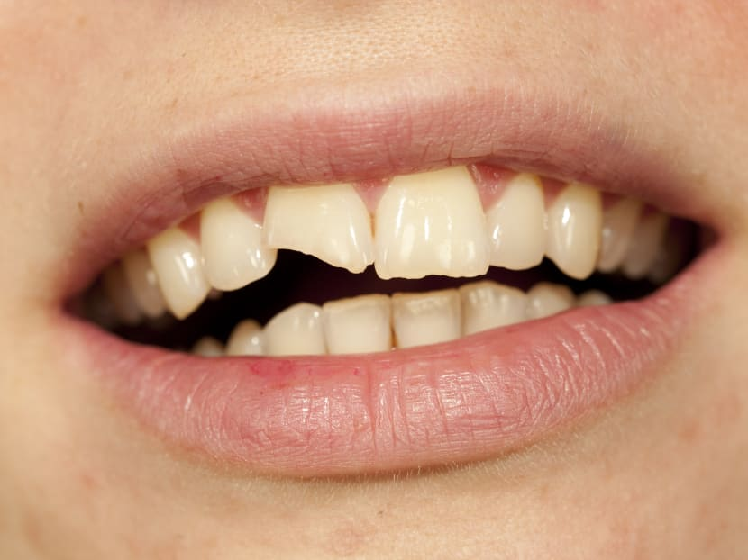Time to chew slowly: How eating economy rice can lead to broken teeth