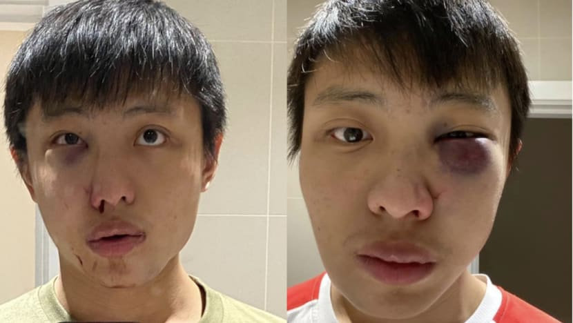 Singaporean student in London says he was assaulted after reacting to COVID-19 comments