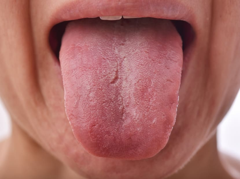 What's that white coating on your tongue? How to tell if you're healthy or not