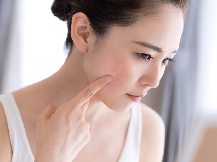 Sensitive skin or eczema: How can you tell and what can you do about it?