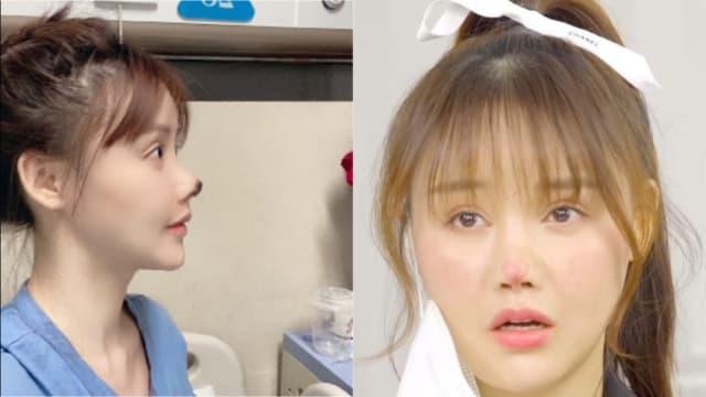 中国女星整型导致鼻头发黑 3个月后曝惨况:肉长不回来
