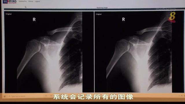 【科技一点通】本地专家联手开发影像增强技术 将医疗放射图像高清化