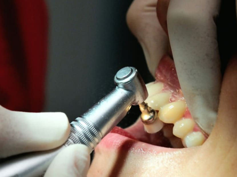 Commentary: Tooth whitening – don't gamble with your teeth