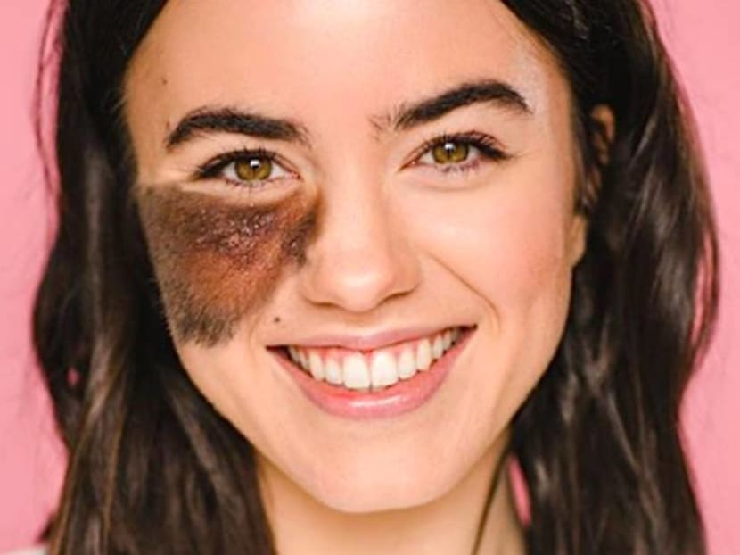 Living with birthmarks: What are the ones you can and cannot remove
