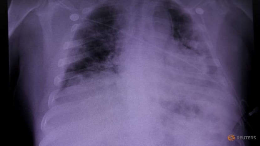 Lung damage found in COVID-19 dead may shed light on 'long COVID': Study