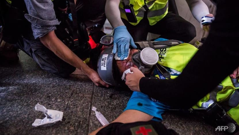 Indonesian journalist hit by rubber bullet while covering protests in Hong Kong