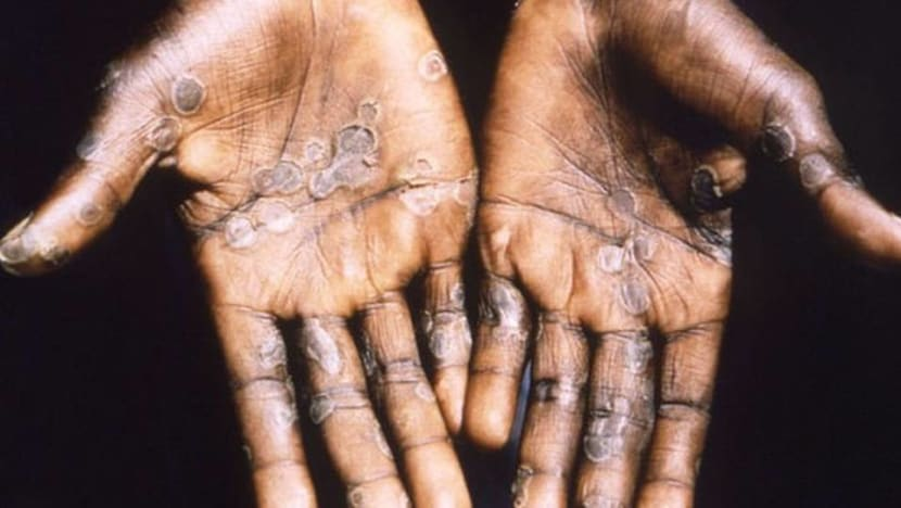 Singapore confirms first case of monkeypox, patient's close contacts quarantined