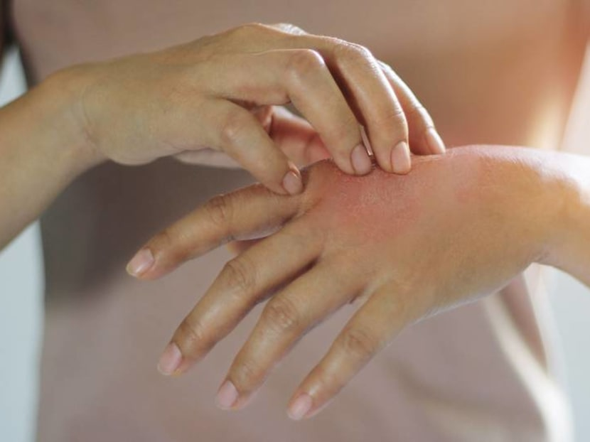 How to deal with eczema: Does skipping seafood help? Are essential oils effective?
